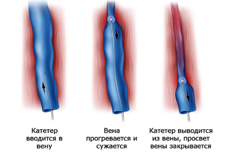 Радиочастотное лечение варикоза
